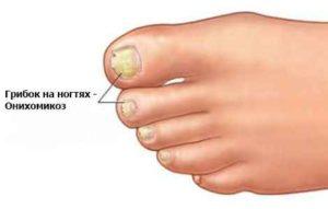 Грибка на ногтях схема