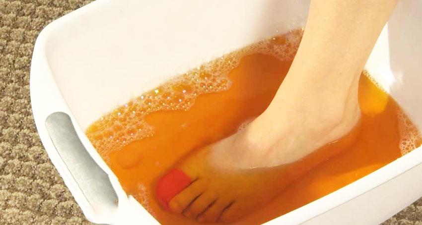 Ванночки от грибка стопы с содой и йодом