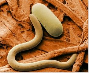 Что является гельминтозом: виды и болезни