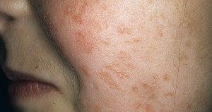 Виды кандидоза, его проявления на коже человека, и как он передается