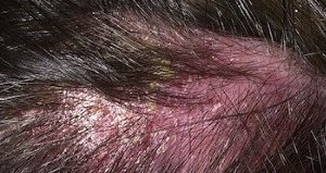 Как лечить себорею кожи головы, и причины ее появления