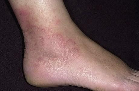 От чего появляется грибок на ногах: его разновидности
