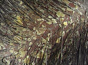 Симптомы и лечение жирной себореи кожи головы