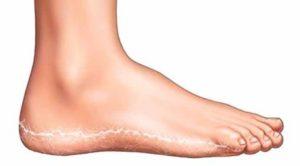 Как проявляется грибок на ногах: первые симптомы