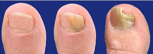 симптомы грибка ногтя и кожи