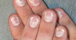 Грибок ногтей на руках у ребенка (фото)