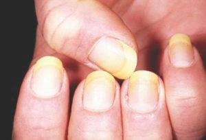 как выглядит грибок на руках