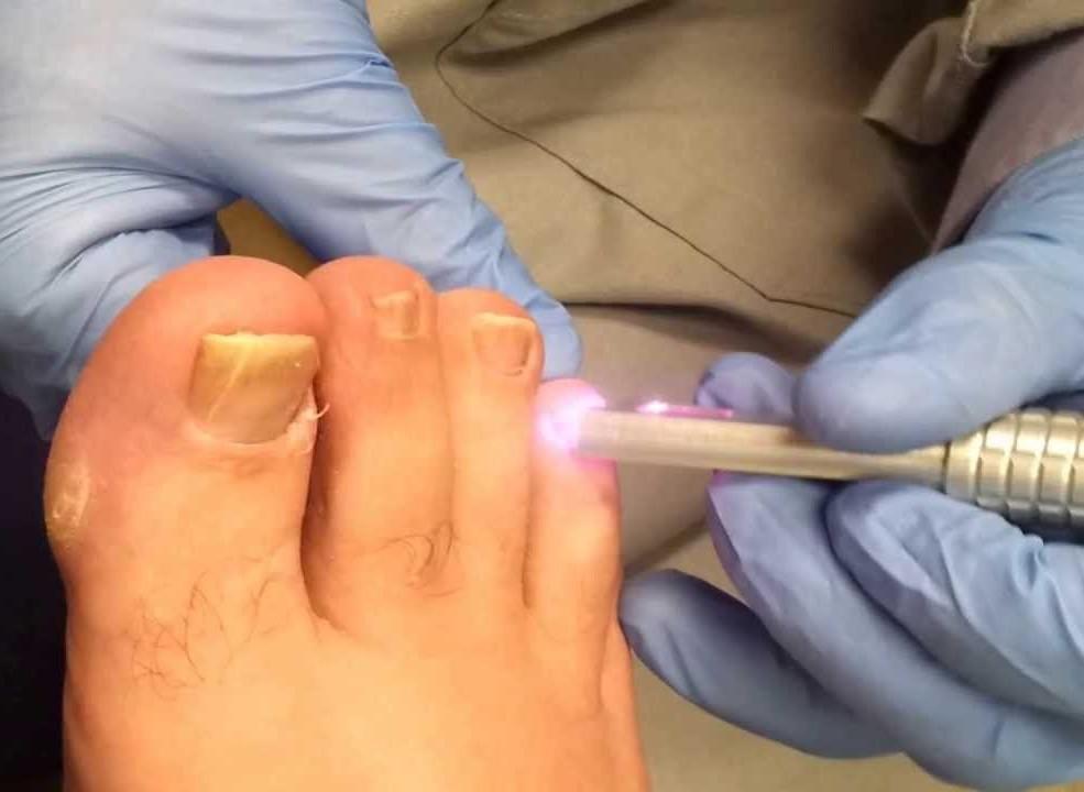 Лак от грибка на ногтях детский