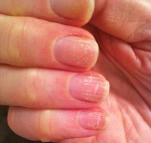 Признаки грибка на ногтях рук (с фото)