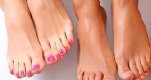 Недорогие но эффективные препараты для лечения грибка ногтей