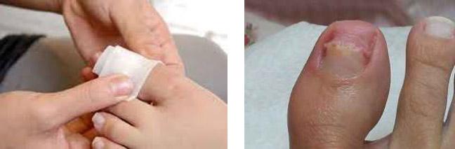 Пластырь для удаления ногтя, пораженного грибком