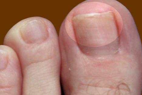Грибок ногтей начальная стадия на руках