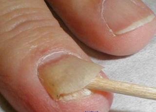 Как снять ноготь, пораженный грибком: способы и средства