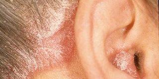 Себорея (себорейный дерматит): формы, причины, лечение