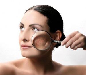 Себорея на лице: причины и лечение