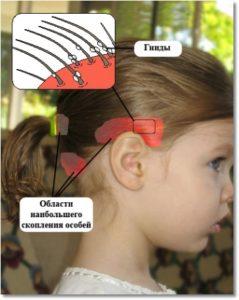Как определить вшей на голове ребенка