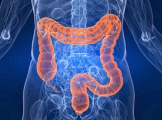 Признаки кишечного кандидоза, и методы лечения его