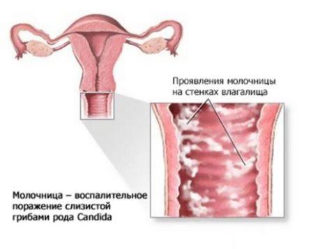 Кандидозы половых органов у мужчин, женщин и детей: симптомы и фото