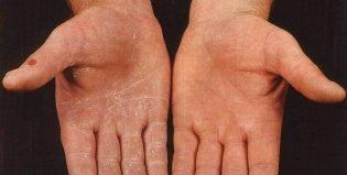 Симптомы грибка на коже рук, как его лечить и больше не заразиться