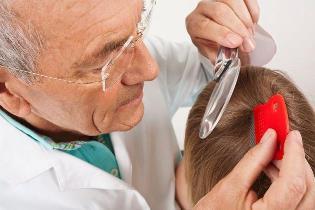 Как избавиться от вшей и гнид: средства для лечения педикулеза