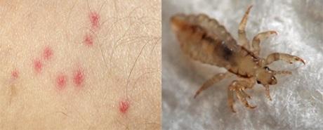 Как выглядят бельевые вши: фото укусов