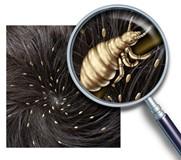 Педикулез и вши: возможные причины, профилактика и меры борьбы