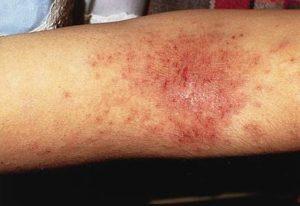 Мокрая экзема на руках и ногах: лечение