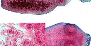 Какая опасность кроется под заболеванием эхинококкоз, и как происходит заражение?