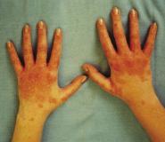 Шистосомы у человека: симптомы, лечение, виды, диагностика