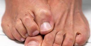 Лучшие мази и крема, которые помогут победить грибок на ногах быстро