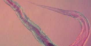 Причины и методы лечения энтеробиоза у взрослых и детей