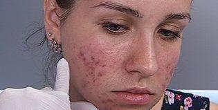 Демодекоз на лице: причины появления, диагностика и методы лечения заболевания