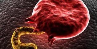 Причины возникновения малярии, симптомы и методы лечения завболевания