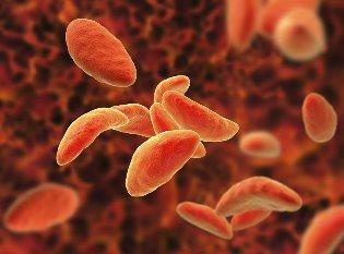 Чем опасен токсоплазмоз во время беременности, и от куда берется заболевание