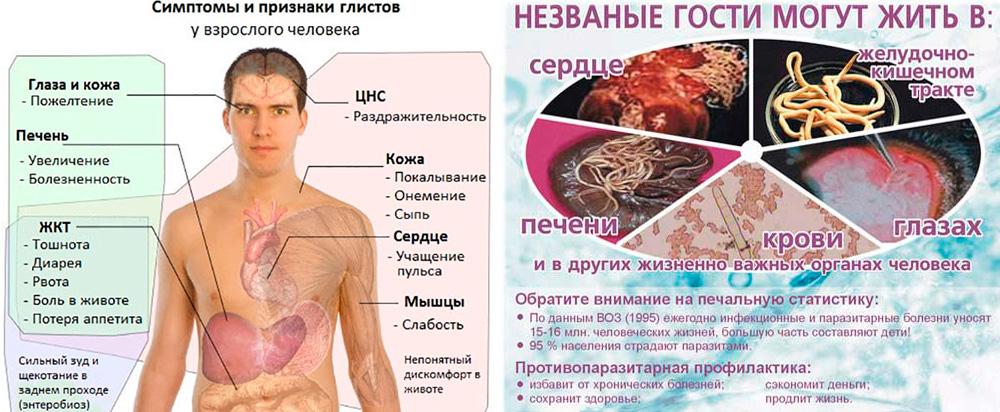 Симптомы паразитов у ребенка