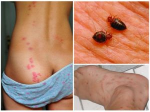 укус клопа на теле человека - как выглядят следы, аллергия, чем обработать, в чем опасность?