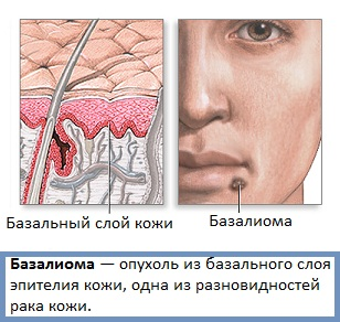 базалиома на лице фото