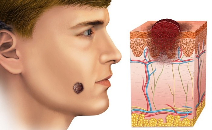 базалиома кожи лица фото