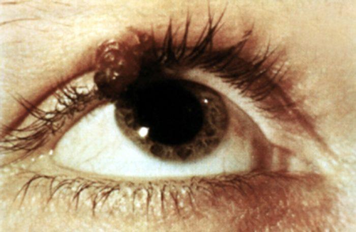 Как понять, что у вас базалиома кожи - симптомы, классификация, лечение