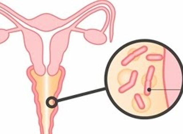 Вульвовагиноз у женщин и маленьких девочек - симптомы, лечение, причины, диагностика
