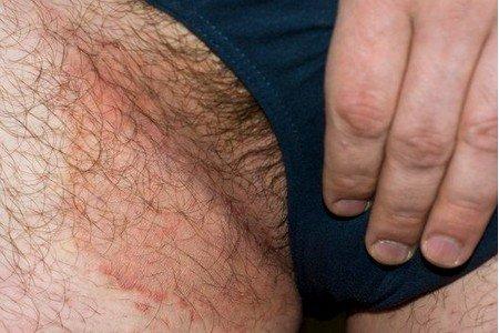 эритразма у мужчин - лечение