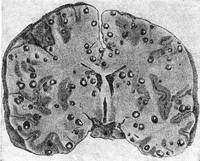 6 видов цистоцеркоза - опасного заболевания для человека: признаки, диагностика, лечение
