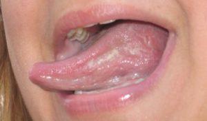 как быстро вылечить молочницу (кандидоз) у детей во рту - симптомы, причины, методы терапии.