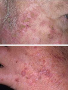актинический кератоз кожи лица