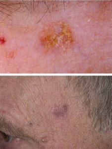 актинический кератоз кожи фото