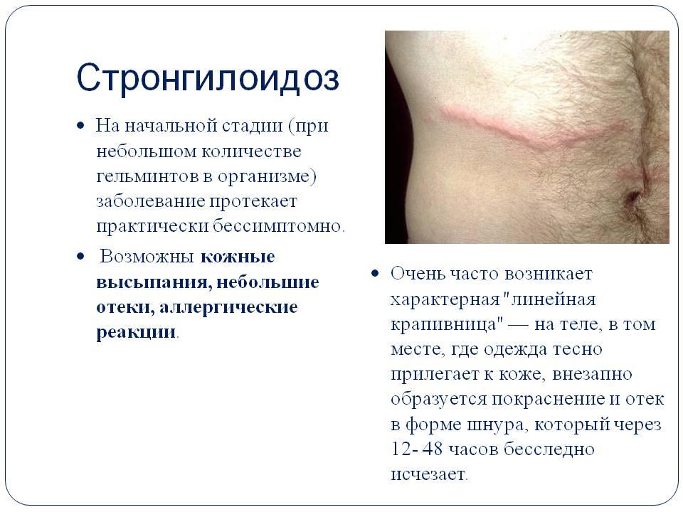 стронгилоидоз симптомы лечение
