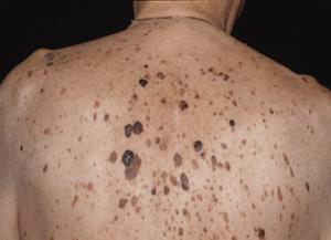 Что такое стронгилоидоз и как его лечить