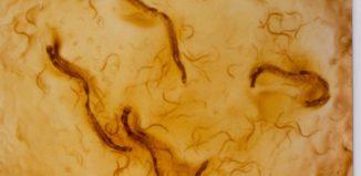 Как распознать стронгилоидоз у взрослых - 5 важных симптомов заражения