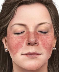 3 признака красной волчанки и как она проявляется - симптомы, лечение, фото.